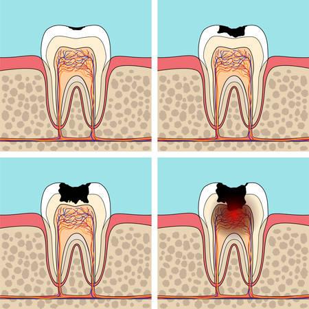 Zahnkaries Stufen. Querschnitt Zahnanatomie und Beschädigungen.
