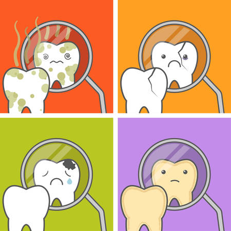 odontolith: Tooth look at the dental mouth mirror. Concept of teeth problems vector illustration. No higiene, chipped cracked tooth, cavities, stained Tooth.