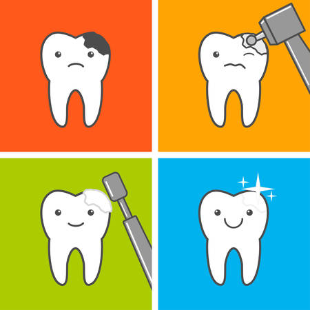 Caries treatment. Process of caries treatment. Vector illustration