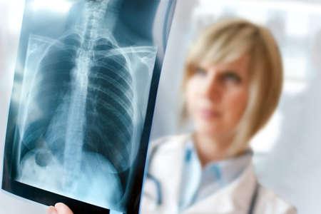 女性医師が肺を見てまたは胴体の x 線