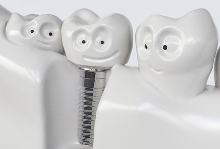 Tooth human cartoon implant. Dental concept. Human teeth or dentures. 3d rendering