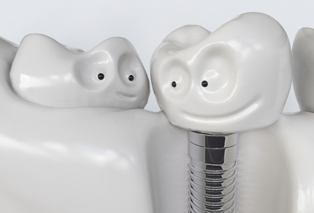 Tooth human cartoon implant. Dental concept. Human teeth or dentures. 3d rendering