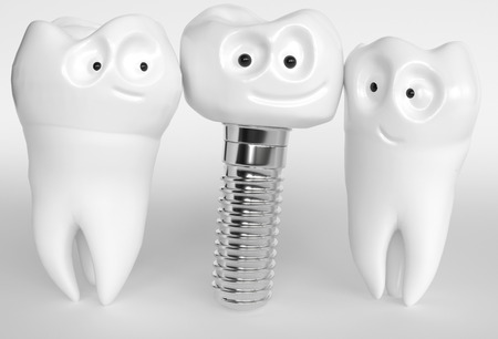 Tooth human cartoon implant. Dental concept. Two teeth are happy about an implant. 3d rendering Stock Photo