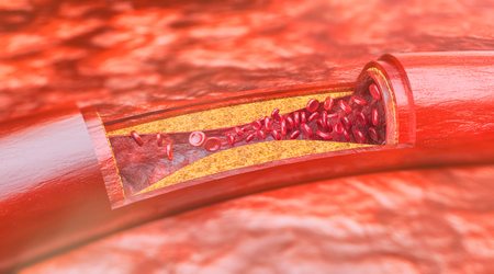 Closeup of a atherosclerosis- 3D rendering Stock Photo