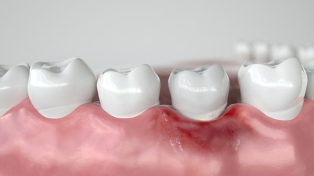 Caries in three stages - Stage 1 Gingivitis - 3D Rendering
