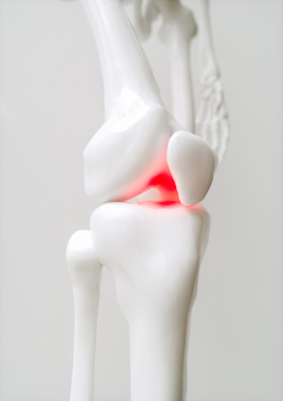 Osteoarthritis-covered knee - 3D Rendering Stock Photo