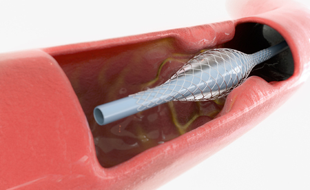 atherosclerosis treatment with stent insert - 3D Rendering Archivio Fotografico - 123583337