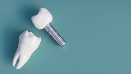 Tooth human implant - 3D Rendering