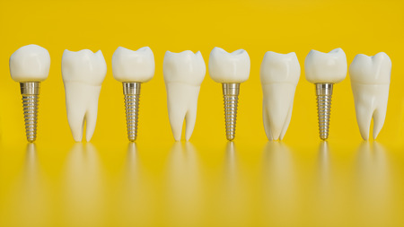 Tooth human implant. Human teeth or dentures on yellow background - 3d rendering Stock Photo