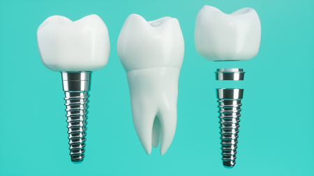 Tooth implant disassembled - 3D Rendering