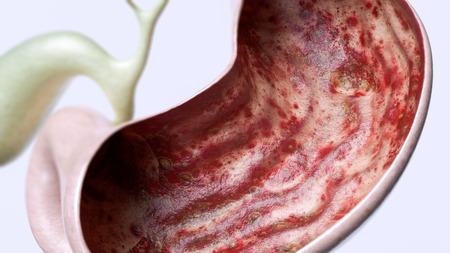 Ulcera allo stomaco stadio 3 di 3 - alto grado di dettaglio - Rendering 3D