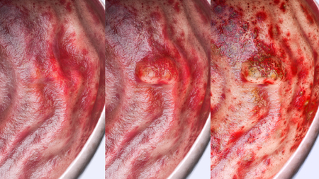 Gastric ulcer in various stages- high degree of detail - 3D Rendering