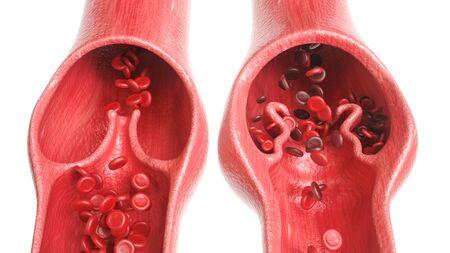 Krampfadern im Vergleich zu gesunden Venen - 3D-Rendering