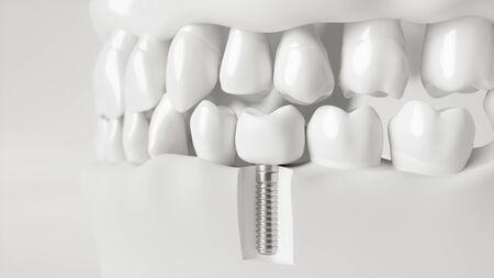 Un implante en la mandíbula - representación 3d Foto de archivo