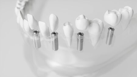 Several implants in a glassy jaw - 3d rendering