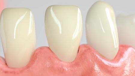Tooth with caries attack in closeup - 3D Rendering 免版税图像