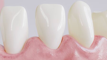 Tooth with caries attack in closeup - 3D Rendering