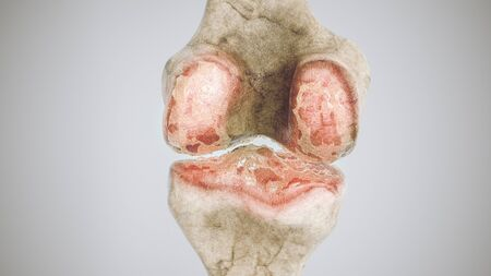 Advanced osteoarthritis - stage 3 - on the knee joint - high degree of detail - 3D Rendering