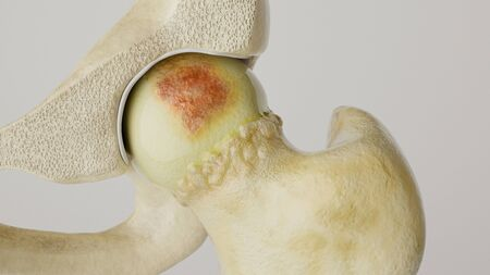 Stronger artheritis on the hip joint - high degree of detail - 3D Rendering Archivio Fotografico - 136812849