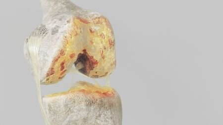 Advanced osteoarthritis - stage 3 - on the knee joint - high degree of detail - 3D Rendering Archivio Fotografico - 136812860