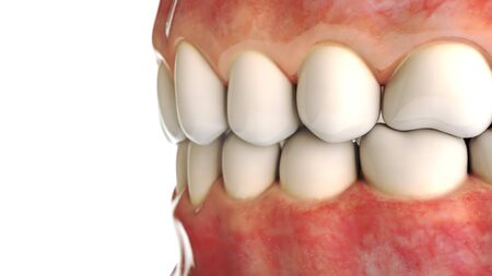 invisible dental implant. Dental concept. Human teeth or dentures. 3d rendering