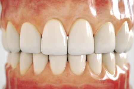 implante dental invisible. Concepto dental. Dientes humanos o dentaduras postizas. Representación 3d