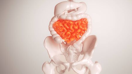 Inflammation of the small intestine- 3D rendering