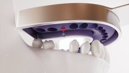 Tooth implantation picture series V02 - 6 of 8 - 3D Rendering