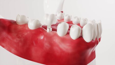 Tooth implantation picture series 12 of 13 -- 3D Rendering Archivio Fotografico - 139300001