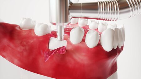 Tooth implantation picture series 5 of 13 -- 3D Rendering Archivio Fotografico - 139299557