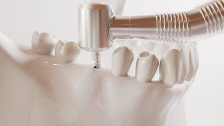Tooth implantation picture series V02 - 2 of 8 - 3D Rendering