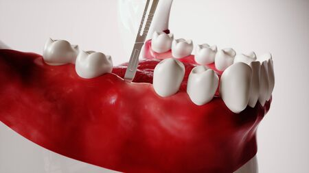 Tooth implantation picture series 2 of 13 - 3D Rendering
