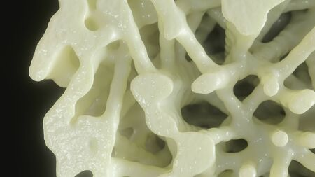 Bone affected with osteoporosis Stock Photo