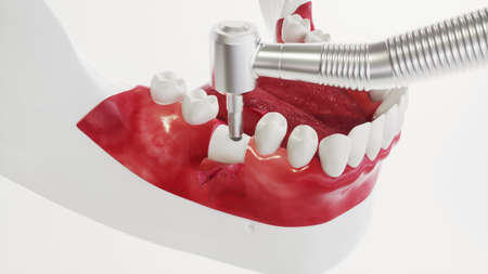 Dental implant on the example of a jaw model - 3D rendering