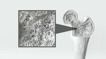 Osteoporosis stage 1 of 3 on white background -- 3d rendering Stock Photo