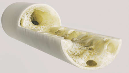 Osteoporosis stage 4 of 4 very detailed -- 3d rendering