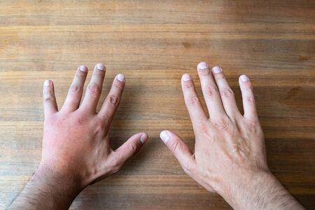 Vergleich zweier männlicher Hände, die von einer Biene oder Wespe gestochen wurden. Handschwellung, Entzündung, Rötung sind Anzeichen einer Infektion. Insektenstich auf der linken Hand auf Holztischhintergrund