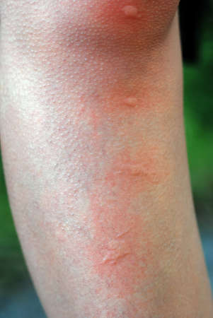 mosquito bite on leg closeup detail