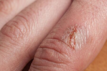 Detail of infected burn on a woman's finger Stockfoto