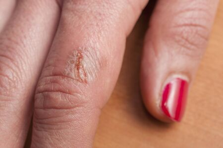 Detail of the infected burn on a woman's finger with red nail polish