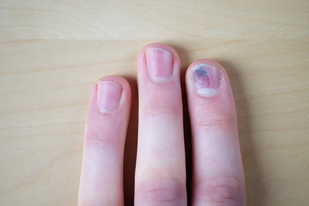 hematoma: Injured nail from a power drill. Very painful. Stock Photo