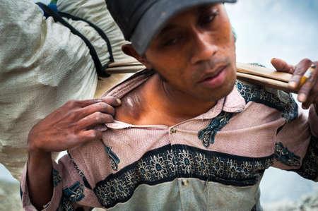 Arbeitskraft an Ijen Krater in Java, Indonesien zeigt eine Narbe auf seiner Schulter aus mit Schwefel Lizenzfreie Bilder - 43483533