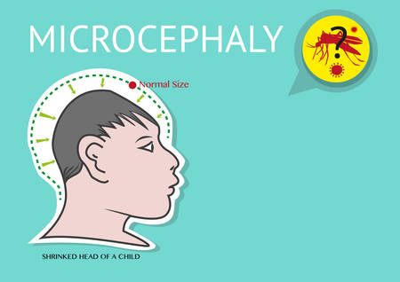 Microcephaly or abnormal smallness of the head linked to Zika Virus.  Zika Virus is suspected to be the cause of microcephaly among women in their first trimester pregnancy Illustration