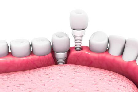 Dental implant structure.3d render
