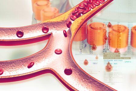 Cholesterol plaque in artery. 3d illustration Banque d'images