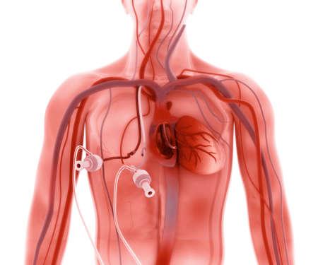 Dialysis process 3d illustration