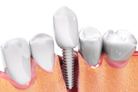 Tooth implant instalation process