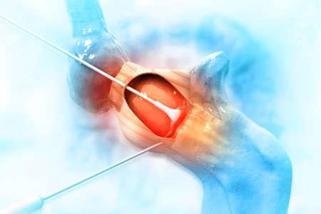 Human knee joint surgery. 3d illustration 写真素材