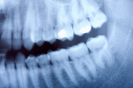 a dental x-ray detail photo