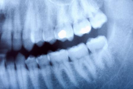 un d�tail de radiographie dentaire
